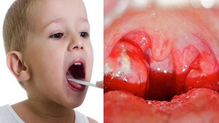 Trẻ em độ tuổi nào có thể phẫu thuật cắt amidan?