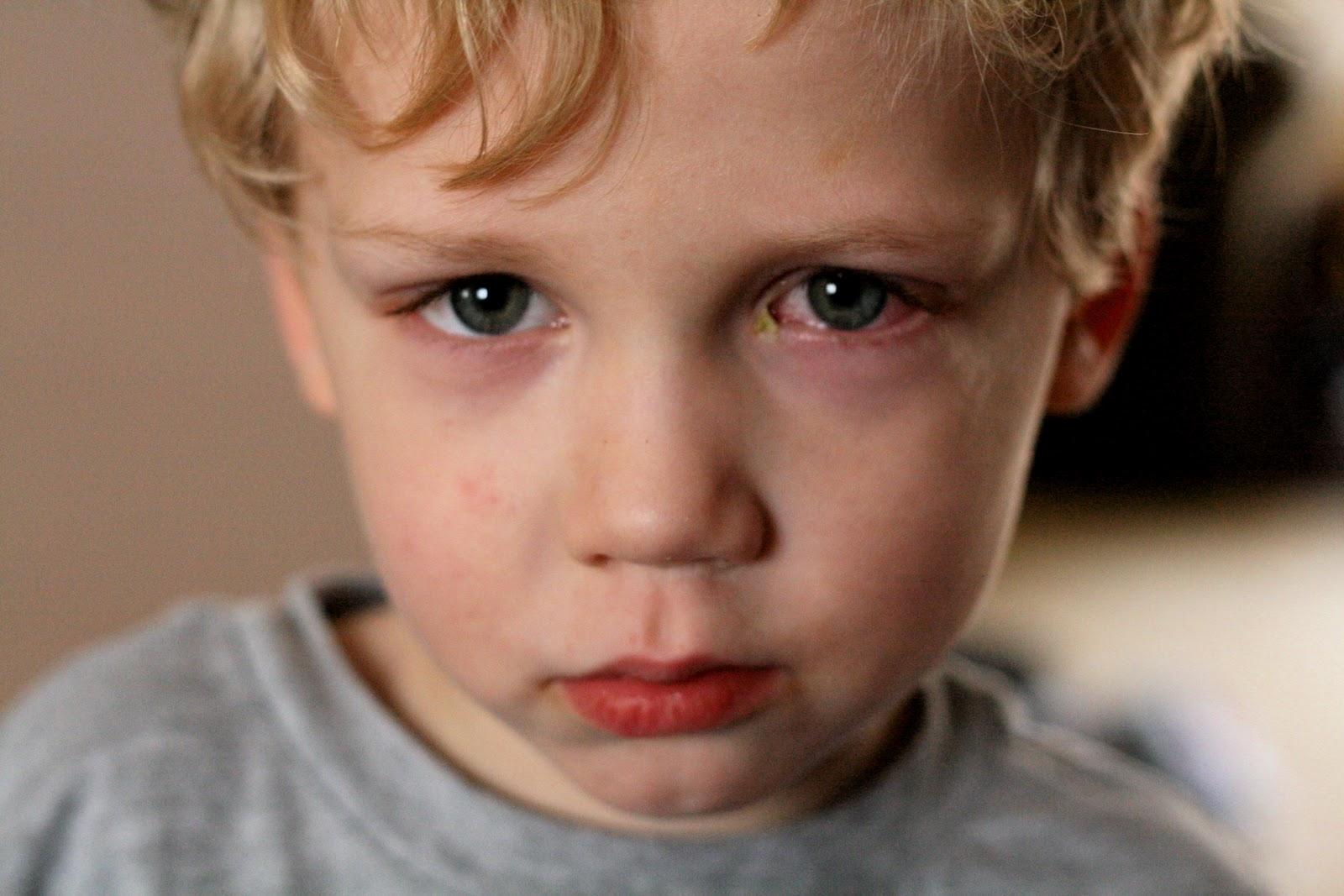 Trẻ nhỏ bị quầng thâm mắt