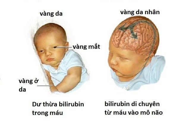 Trẻ sơ sinh bị vàng mắt
