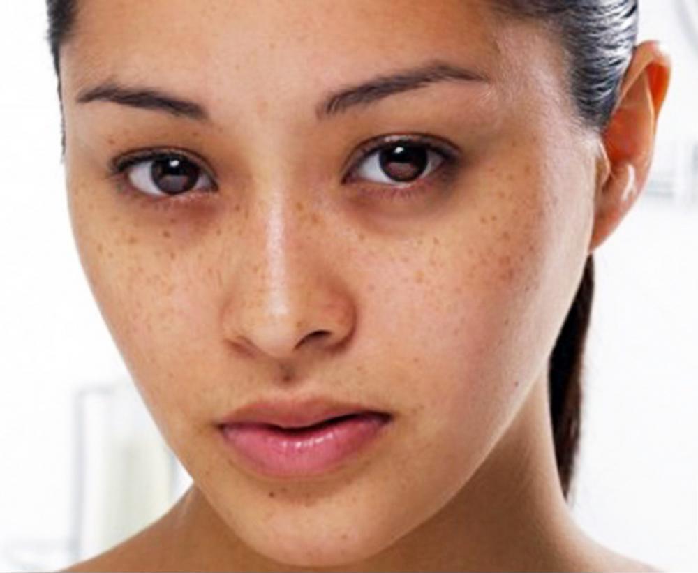 Nguyên nhân chính gây ra nám, tàn nhang và các đốm trên mặt