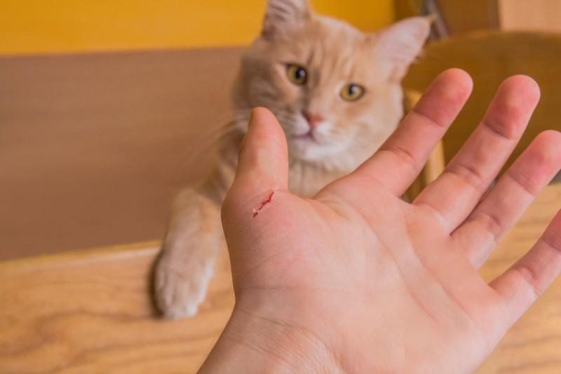 Khi bị mèo cắn bạn nhớ đến gặp bác sĩ ngay trước 48 giờ để tăng hiêu quả phòng bệ