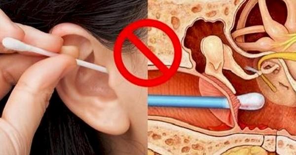 Có hay không chuyện lấy ráy tai gây ảnh hưởng thính lực?