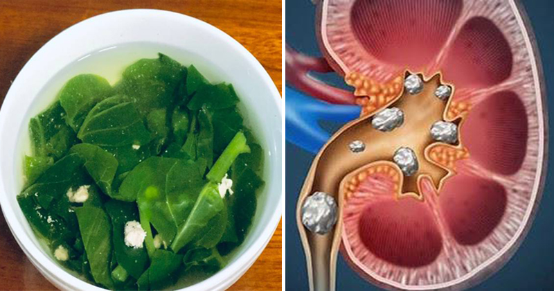 Ăn rau mồng tơi đúng cách để tránh mang họa cho sức khỏe
