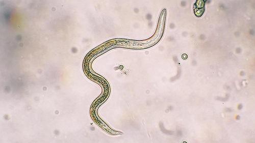 3 món ăn quen thuộc tiềm ẩn nguy cơ nhiễm ký sinh trùng gây bệnh, cẩn thận mang bệnh vào người