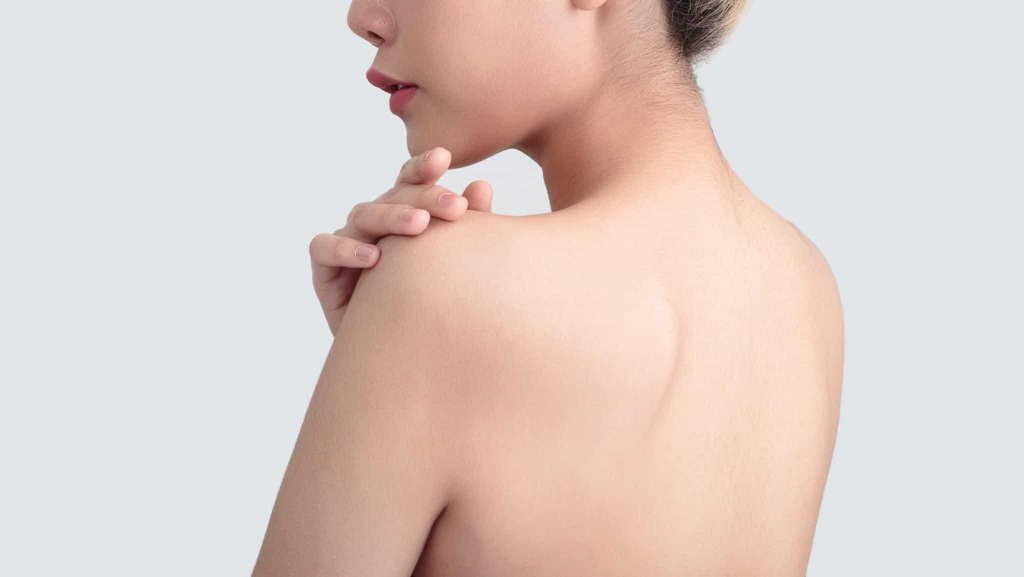 Gợi ý 4 tips trị mụn lưng hiệu quả bằng nguyên liệu tự nhiên