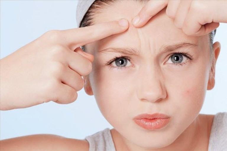 Mụn ẩn dưới da: Nguyên nhân và biện pháp ngăn ngừa hiệu quả
