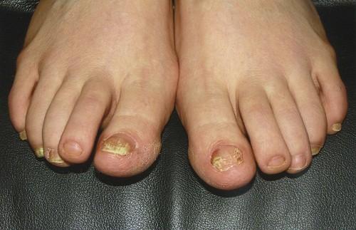 Bệnh nấm móng chân ở trẻ: Nguyên nhân và cách điều trị