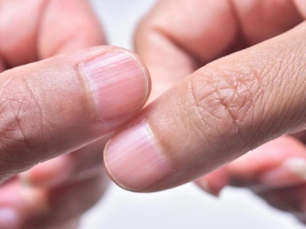 móng tay có nhiều sọc dọc