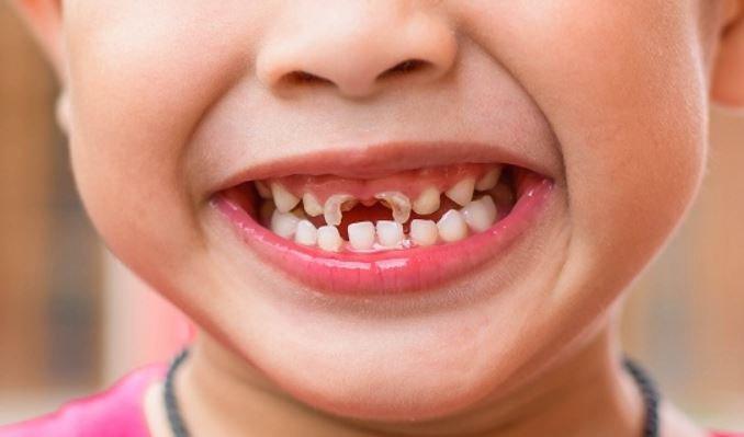 Sún răng ở trẻ nhỏ: Nguyên nhân, cách điều trị và phòng tránh