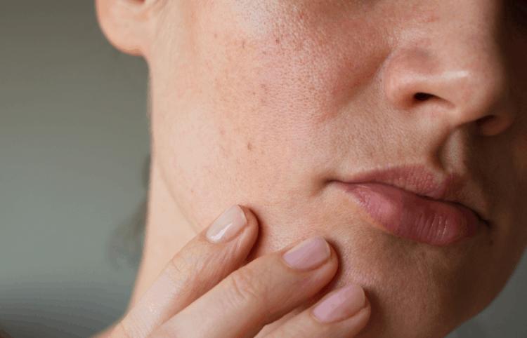 3 dấu hiệu cho thấy làn da của bạn đang cần được tẩy tế bào chết