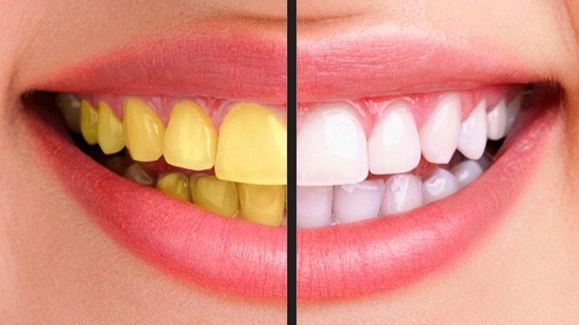 6+ cách làm trắng răng đơn giản tại nhà, tự tin với hàm răng trắng sáng