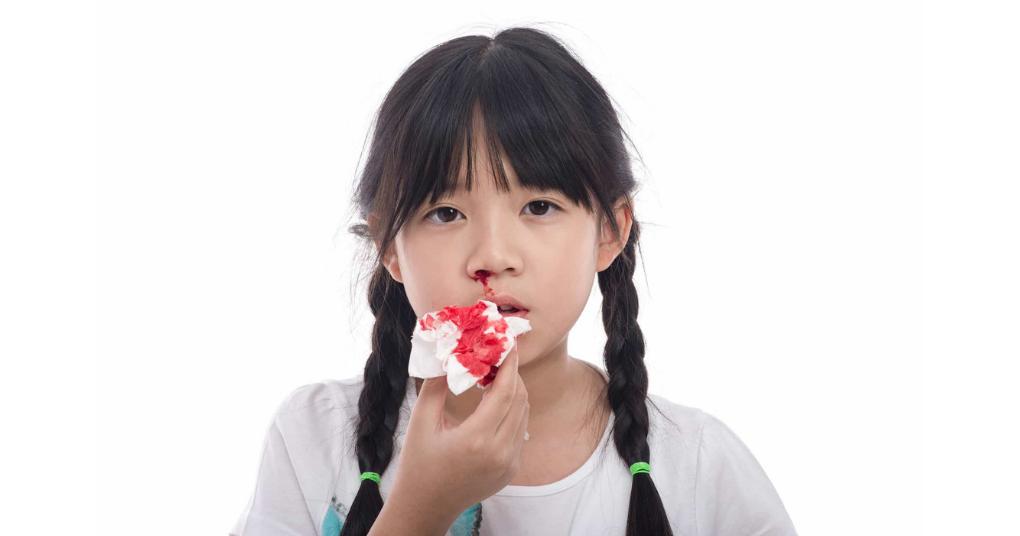 Phương pháp chăm sóc trẻ mắc bệnh rối loạn đông máu an toàn